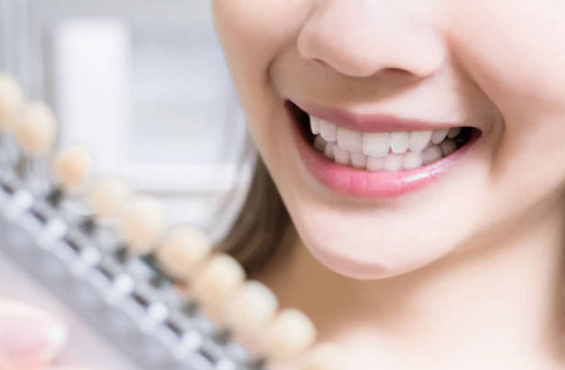 Teeth Whitening in Tarpon Springs, FL - Tarpon Dental