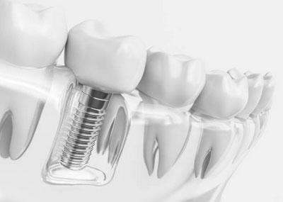 Dental Implants in Tarpon Springs, FL - Tarpon Dental