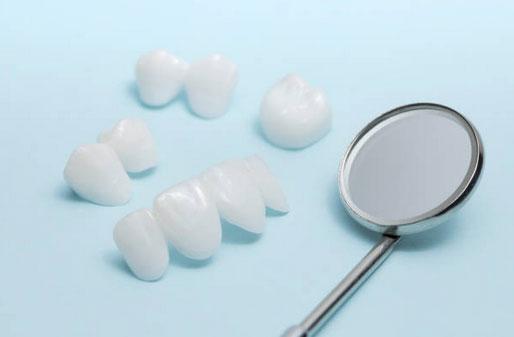 Dental Veneers in Tarpon Springs, FL - Tarpon Dental