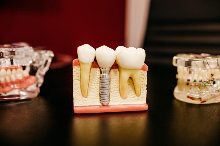 dental implants tarpon springs