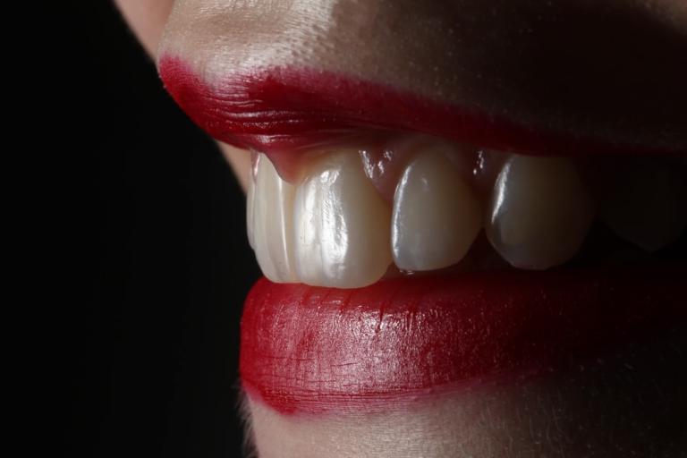 dental implants benefit tarpon fl