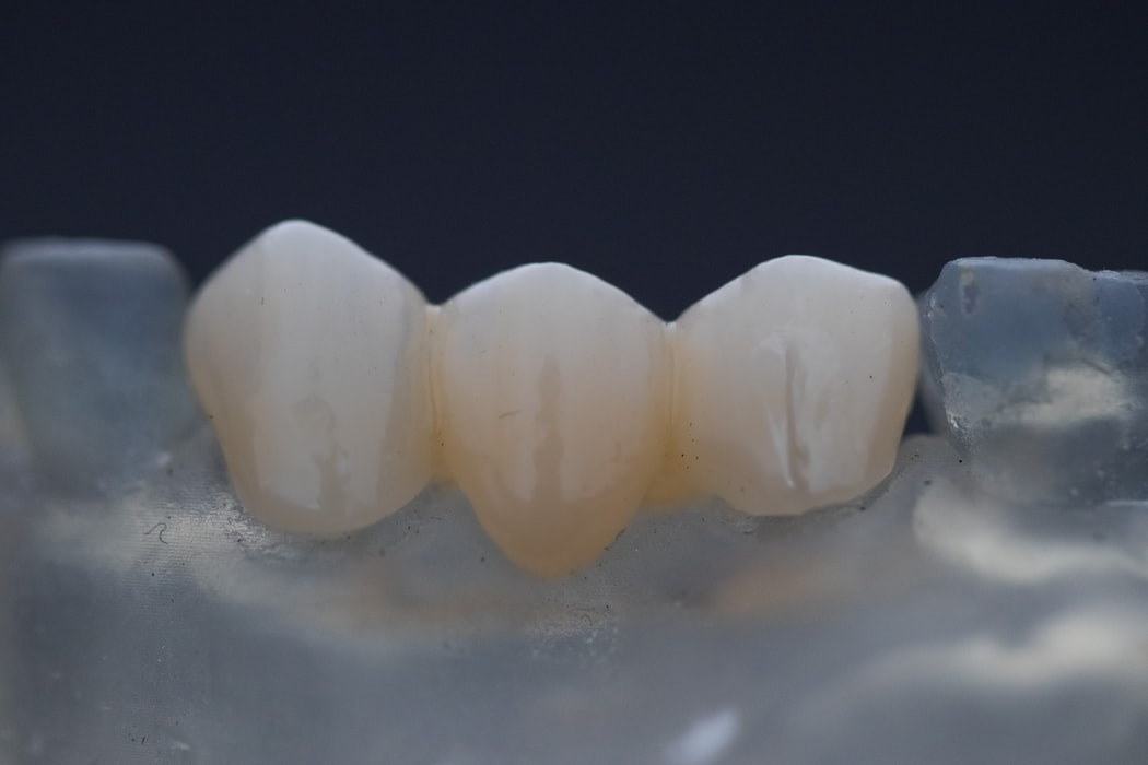 dental tarpon springs fl