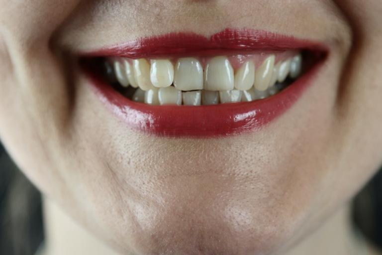 teeth whitening tarpon springs fl