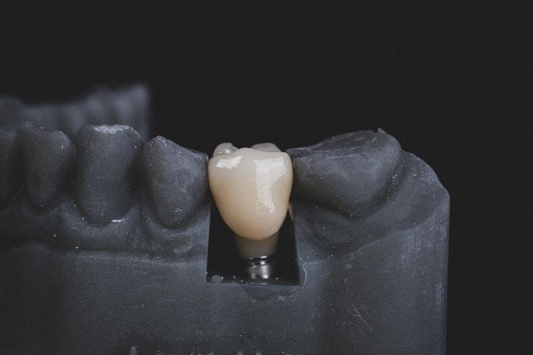 dental implant emergency dentist harbor