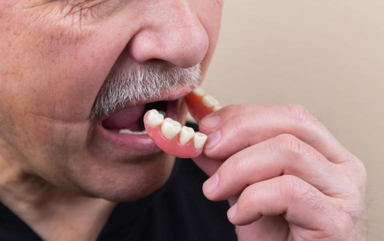 dental implant vs dentures procedure