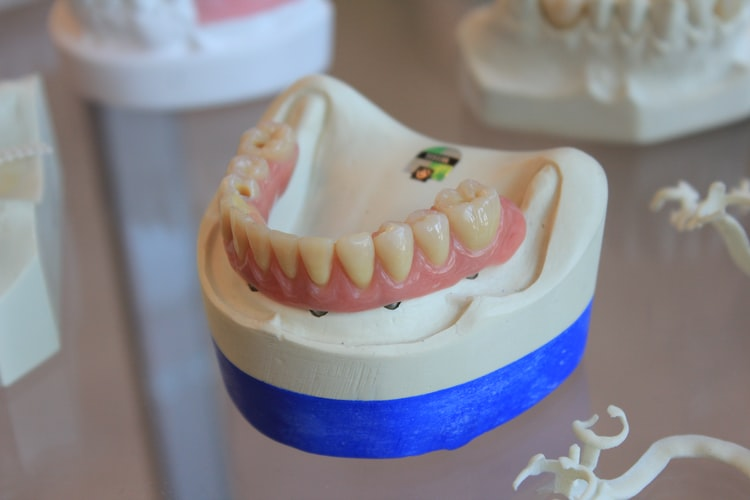 dental implants vs dentures tarpon springs