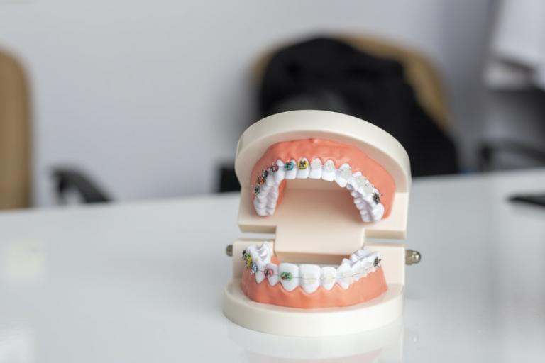 invisalign emergency dentist in palm harbor florida